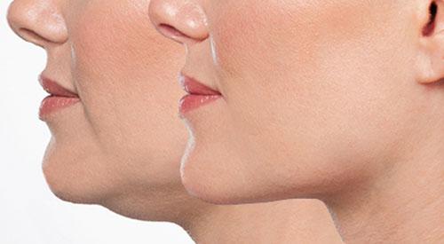 belkyra double chin treatment hamilton