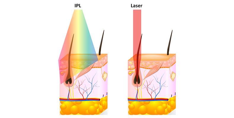 laser-hair-removal-hamilton-laser-vs-ipl-skin-logics