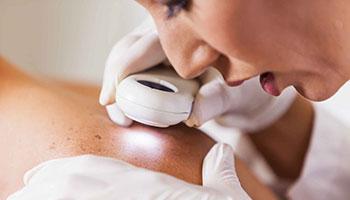 skin-cancer-surgery-skin-logics-nz