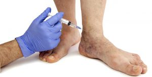 spider-vein-treatment-sclerotherapy-skin-logics